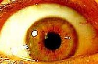 Click Eye