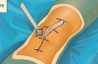 Chirurgie du genou 1