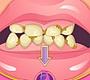 Speel het nieuwe girl spel: Vieze Tanden