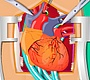 Play the new Girl Flash Game: Heart Surgery 2